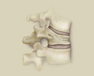 Dureri de spate mai mici in zona abdominala si fesele